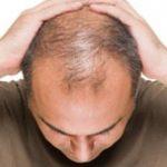 初期脱毛とは?どんな育毛剤で発生するの?起きた時の対処方法も知ろう!