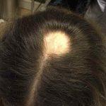 10円はげ(円形脱毛症)の原因と対策、治し方について!どんな種類がある?