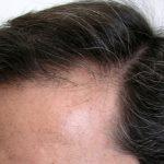 生え際の産毛が薄くなってる!その原因や改善するための生活習慣などを紹介!