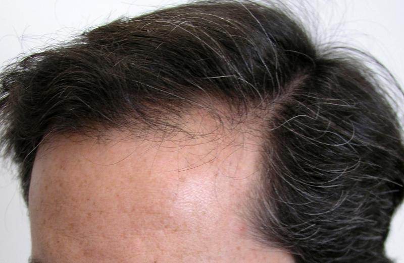 生え際 産毛
