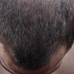 頭皮にカビが発生するとどうなる?症状や原因、改善方法を紹介!頭皮の状態を良くするには?