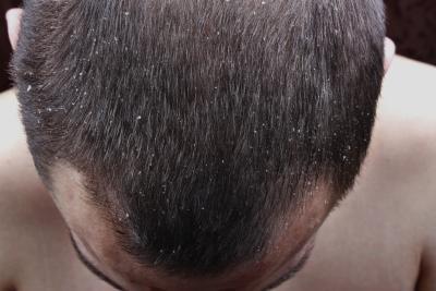 頭皮 カビ