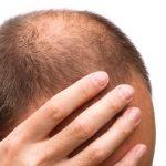 頭頂部の薄毛の原因はなに?改善方法と似合う髪型を紹介!