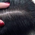 フケがひどい!粃糠性脱毛症の原因・症状・治療法を紹介!