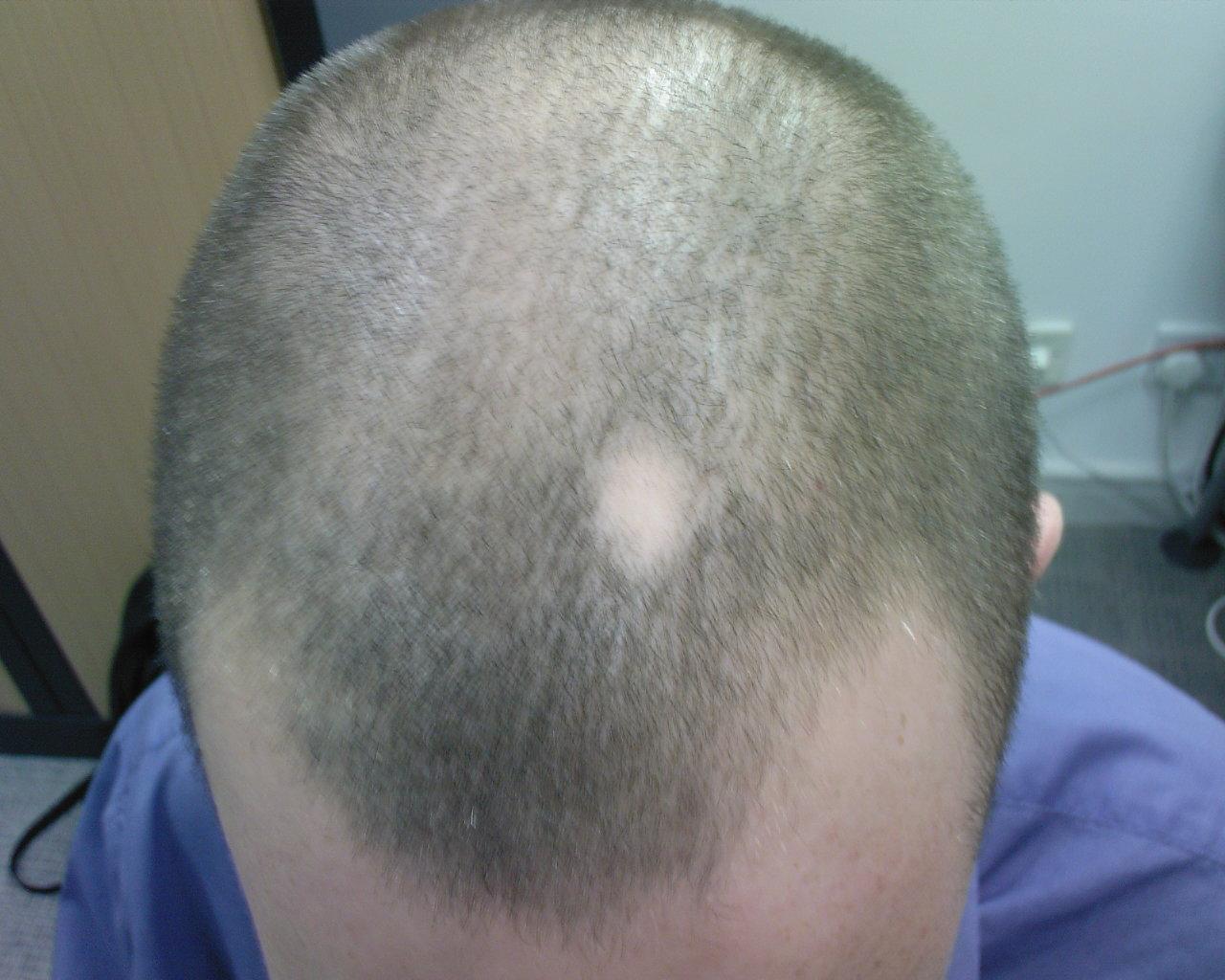 円形脱毛症 子供