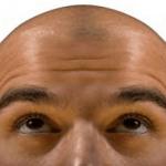 乏毛症ってどんな病気?遺伝が関係刷る?症状や治療方法を知ろう!