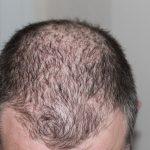 脂漏性脱毛症とは?原因や治療法、予防法を知ろう!食生活の見直しで防ぐことができる?
