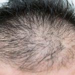 毛量が少ない男性に似合う4つの髪型を紹介!女性におすすめなアレンジ方法は?