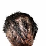 自己免疫疾患で脱毛が発生するメカニズムについて|円形脱毛症との関係性について