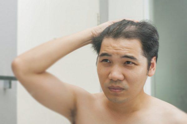 薄毛 髪型