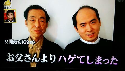 斎藤さん ハゲ